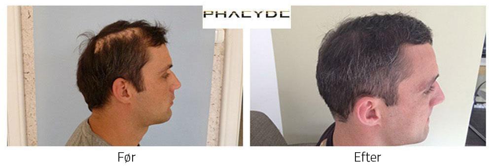 Hårtransplantation Før - Efter Billeder
