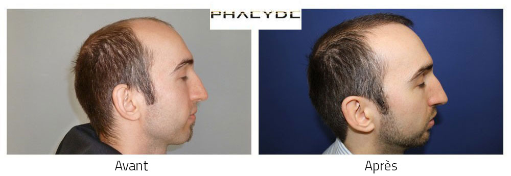 Greffe de cheveux Avant - Après Photos