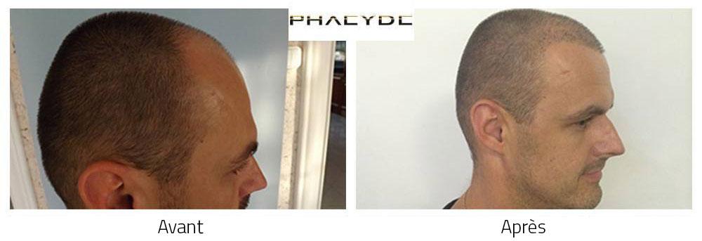 implantation cheveux fille ou garçon