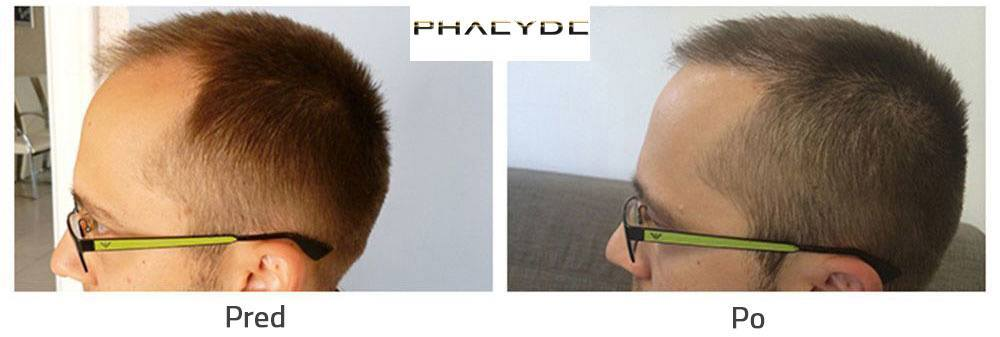 Hair transplant before after result