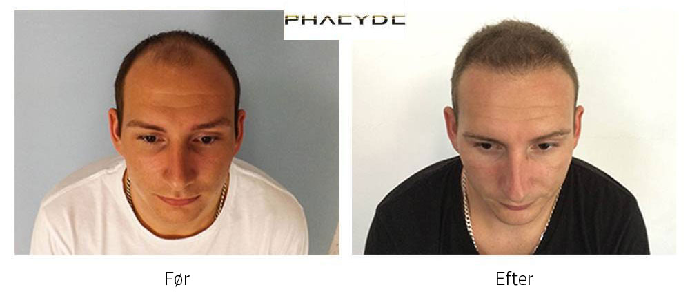 Resultatet af en hårtransplantation