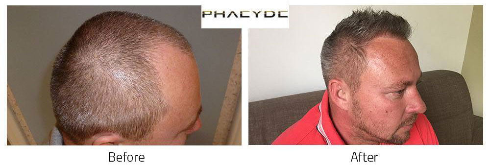 Hair Transplant Gabor J. 3500 Hairs