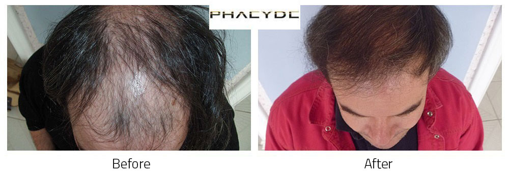 Hair Transplant Peter Molnar Kalloy 4500 Hairs