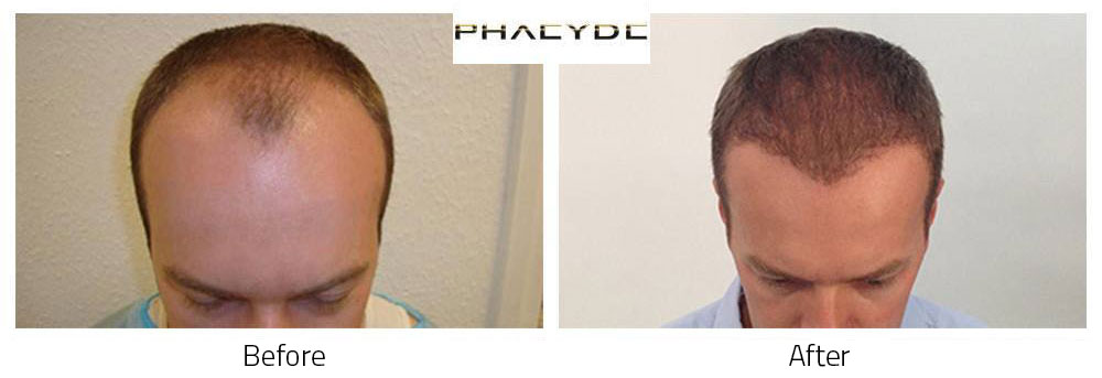 Hair Transplant Thomas L. 7000 Hairs