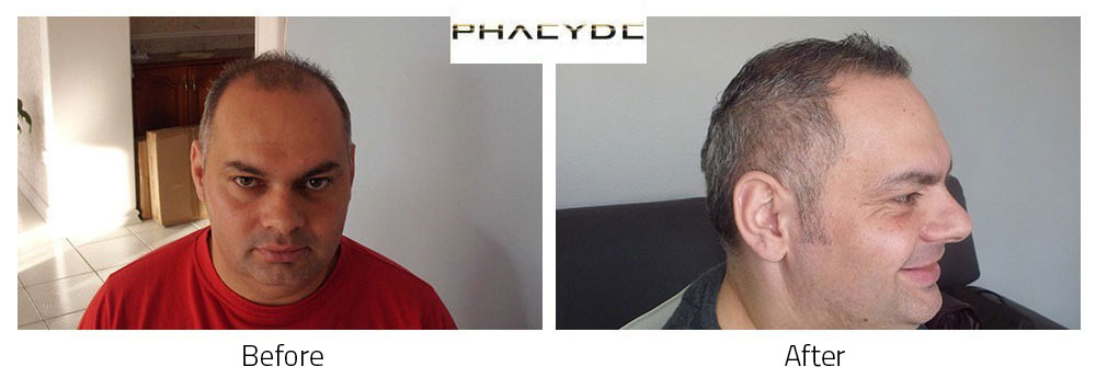 Hair Transplant Zoltan L. 9000 Hairs