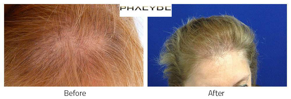 Hair Transplant Susan M. 3500 Hairs