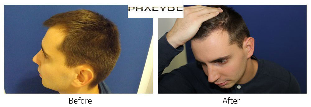 Hair Transplant Agoston N. 2000 Hairs
