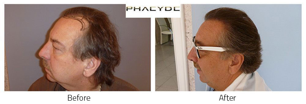 Hair Transplant Imre Bajor 4000+ graft