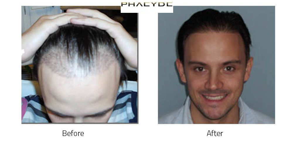 Hair Transplant Miklos S. 5000 Hairs