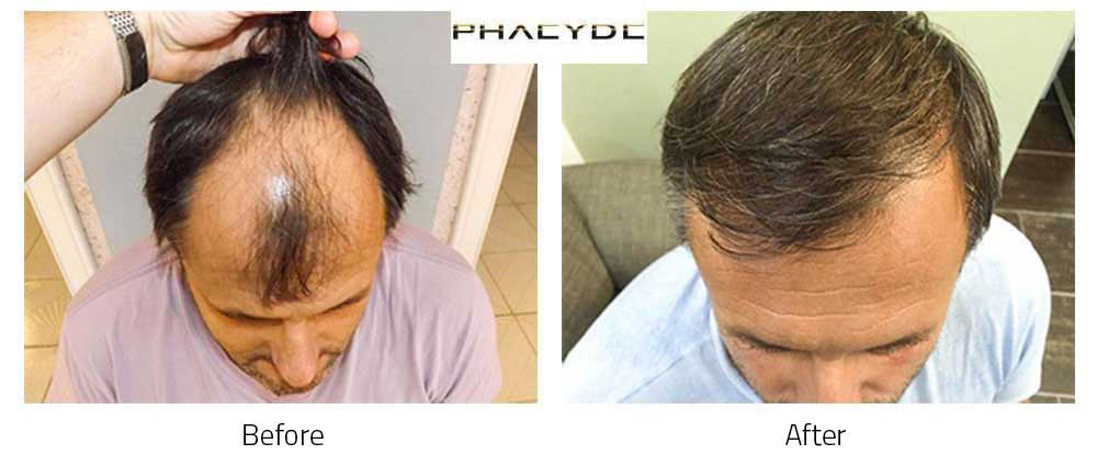 Hair Tranplant Before After?>