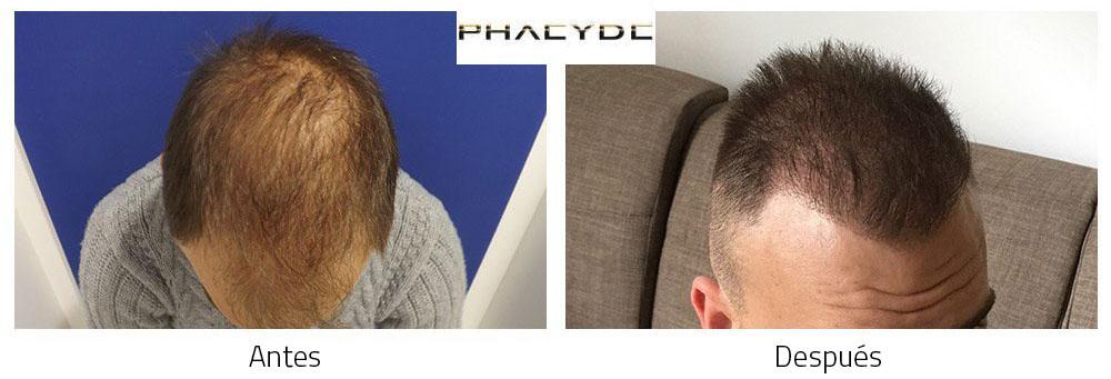 Trasplante de pelo Antes - Después Resultado