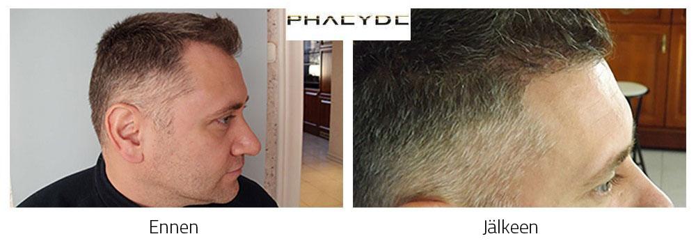 Ennen ja jalkeen hiussiirteen