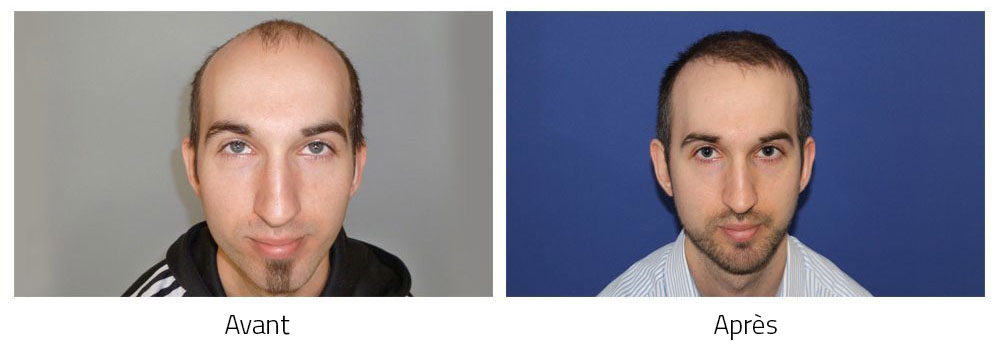 Hair transplant before after result photos