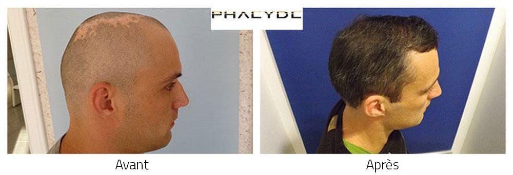 Greffe de cheveux avant et après résultat