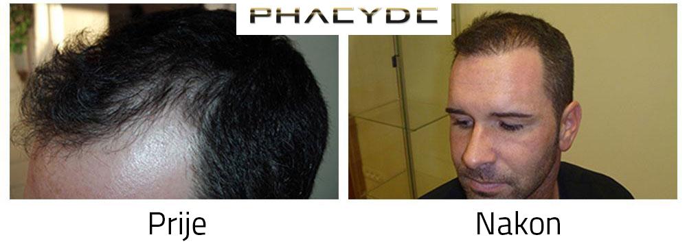 Obnavljanje ostecene kose