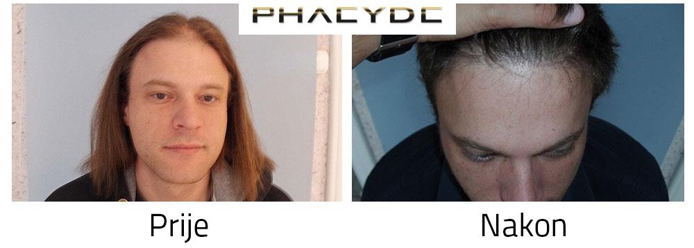 Transplantacija kose prije poslije rezultata