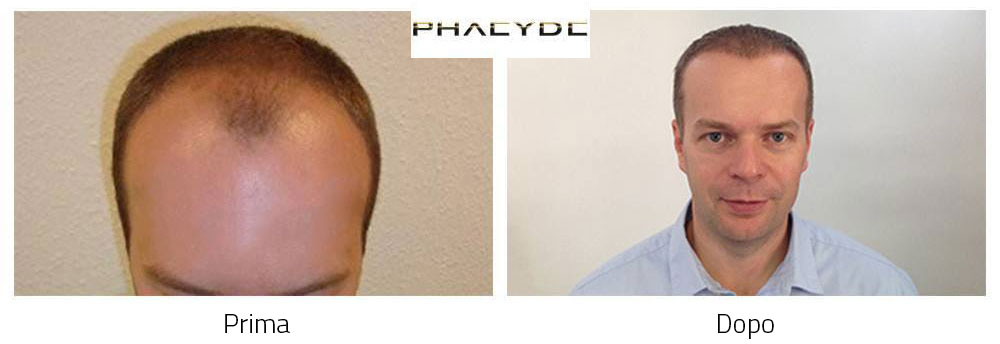 Trapianto di capelli prima e dopo risultati