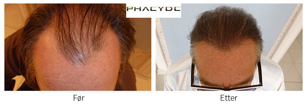 Hårtransplantasjon før - etter resultat