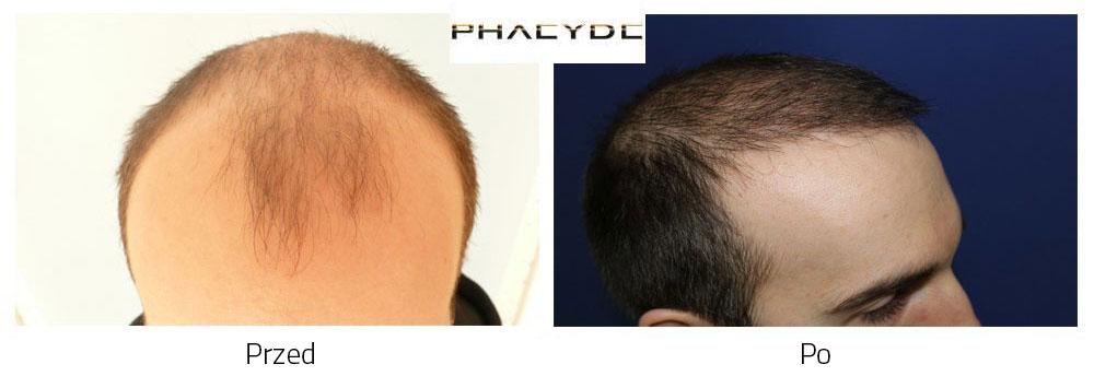 Przeszczep włosów przed po rezultat