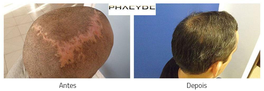 Transplante capilar antes - depois resultados