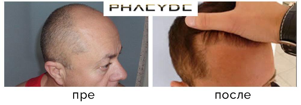 Transplantacija kose pre nakon