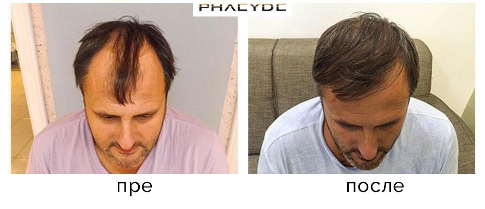 Трансплантација косе фотографије пре - после