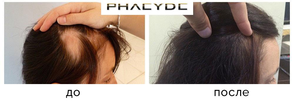 Трансплантация волос до после результат