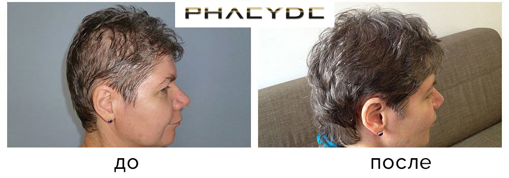 Marbo sampon protiv opadanja kose iskustva