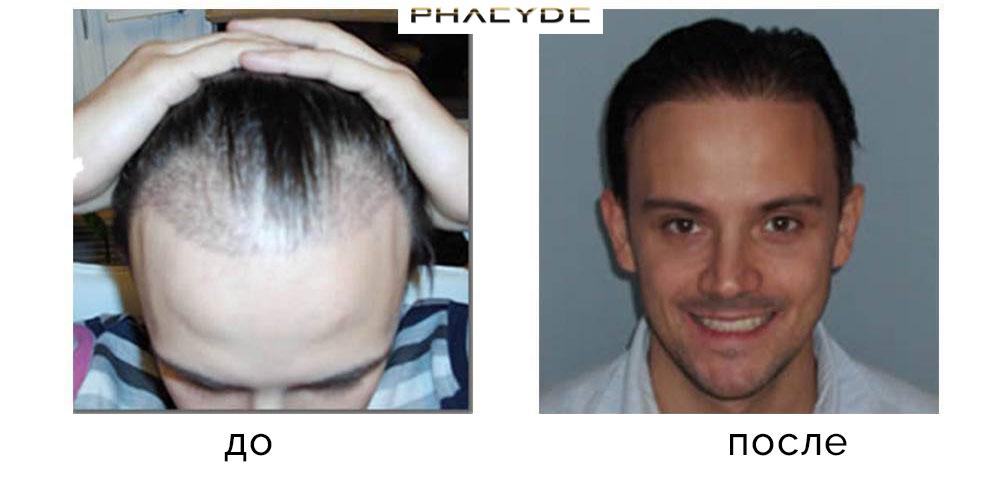 Koliko dugo kosa raste