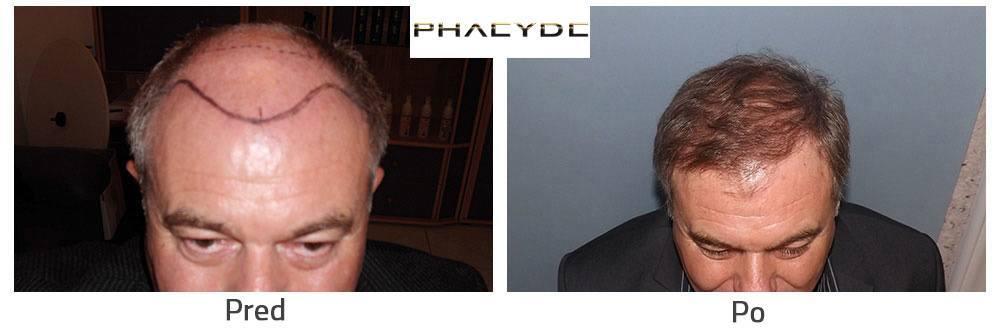 transplantácia vlasov pre a po