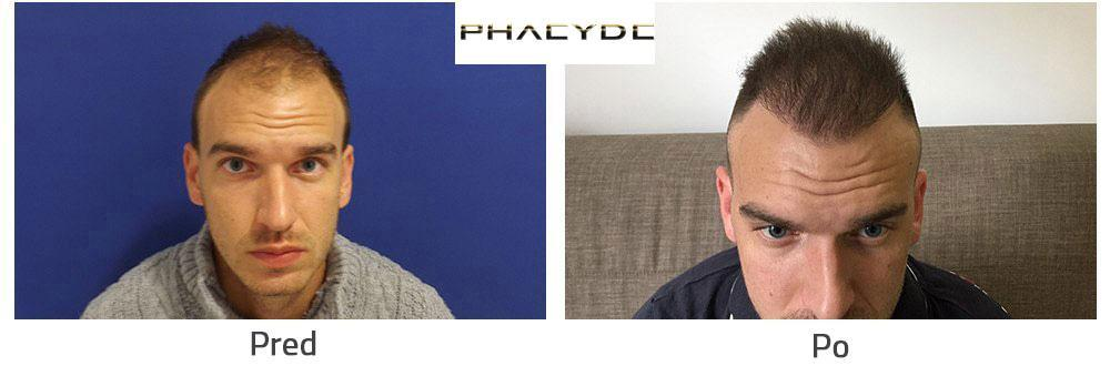 Transplantacia Vlasov alebo Nastrelovanie Vlasov a pigmentácie ... d812dbc2559