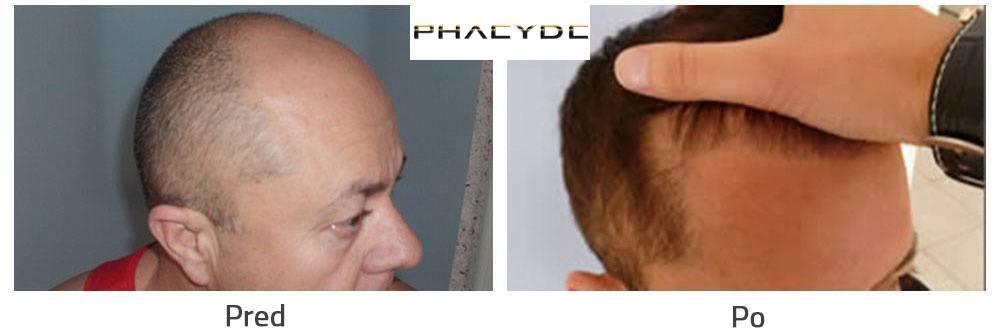 Transplantácia vlasov