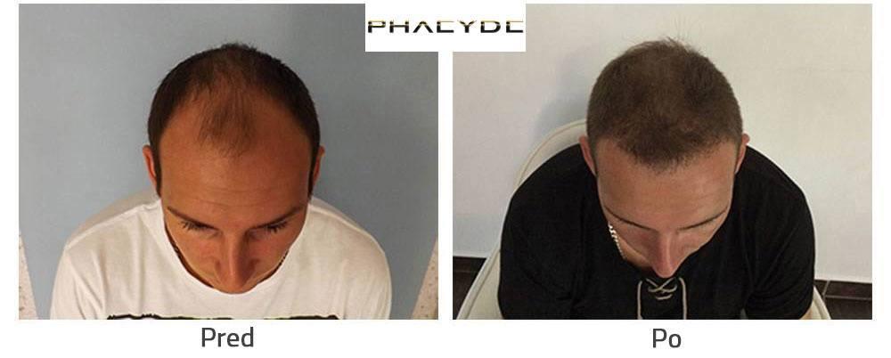 Transplantácia vlasov alebo Nastrelovanie Vlasov pred po následok