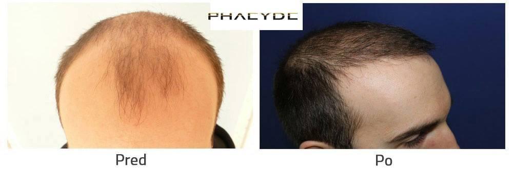 ... Transplantácia vlasov alebo Nastrelovanie Vlasov pred po následok ... 40d864b4ed1