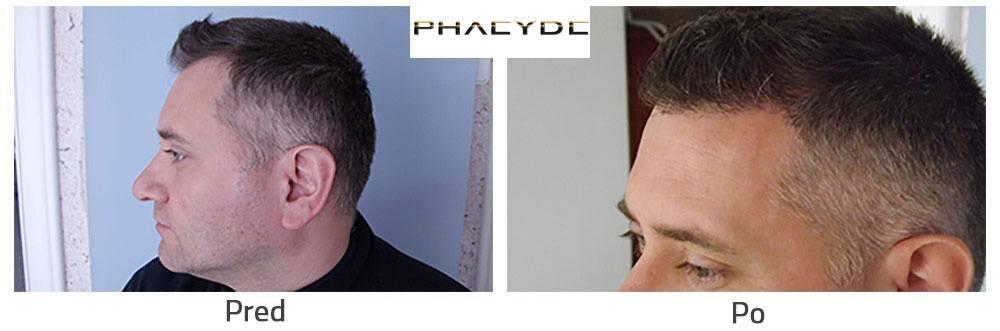 Transplantace vlasů nebo nastřelení před po následek