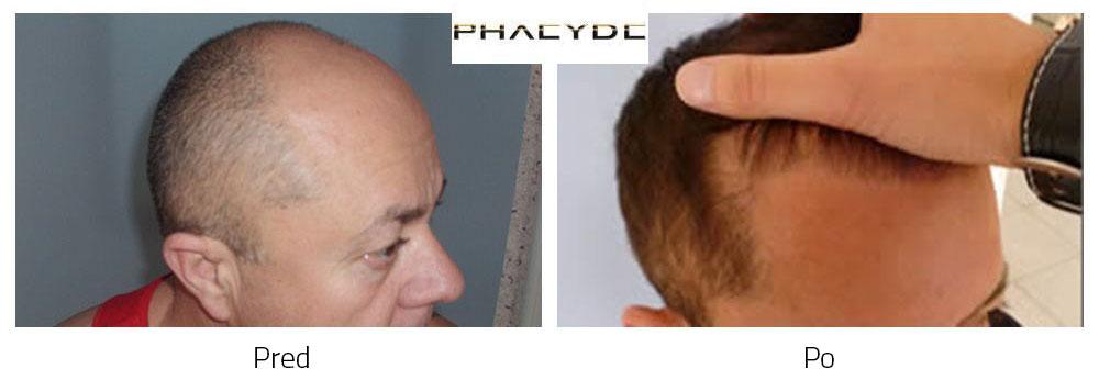 Presaditev las Pred - Po