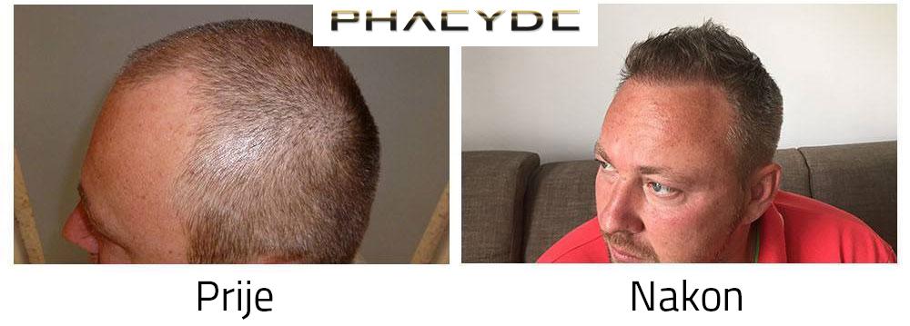 Transplantacija kose Prije - poslije fotografije