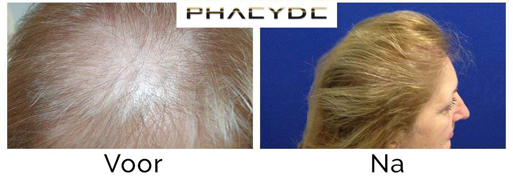 Haartransplantatie Voor - Na Foto's