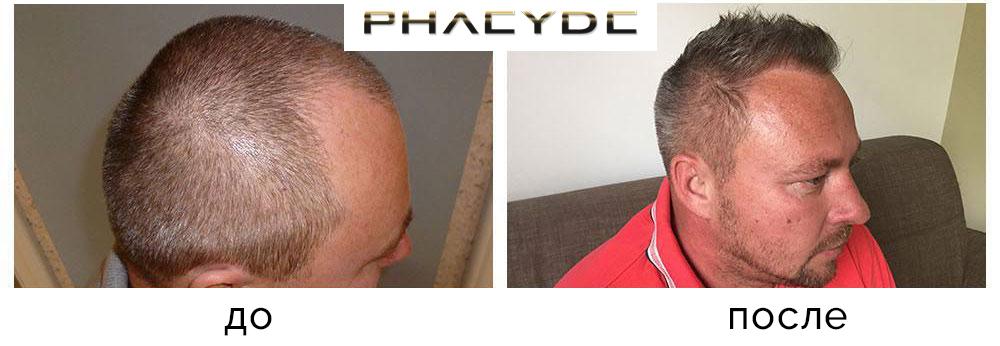Трансплантация волос, снимки До - После