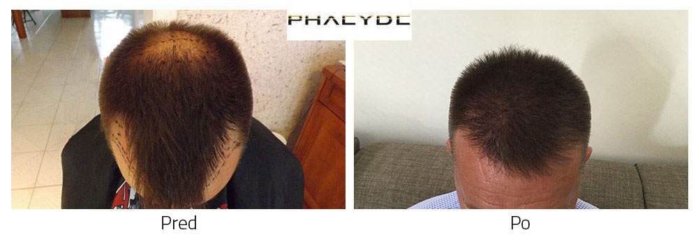 Presaditev las Pred - Po fotografijah