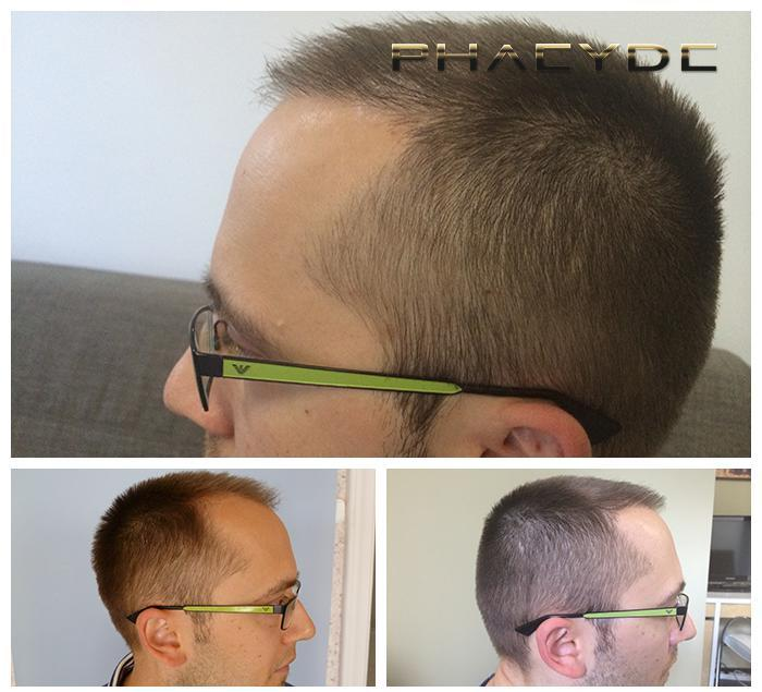 Hair transplant fue results before after photos aaron p - PHAEYDE Clinic