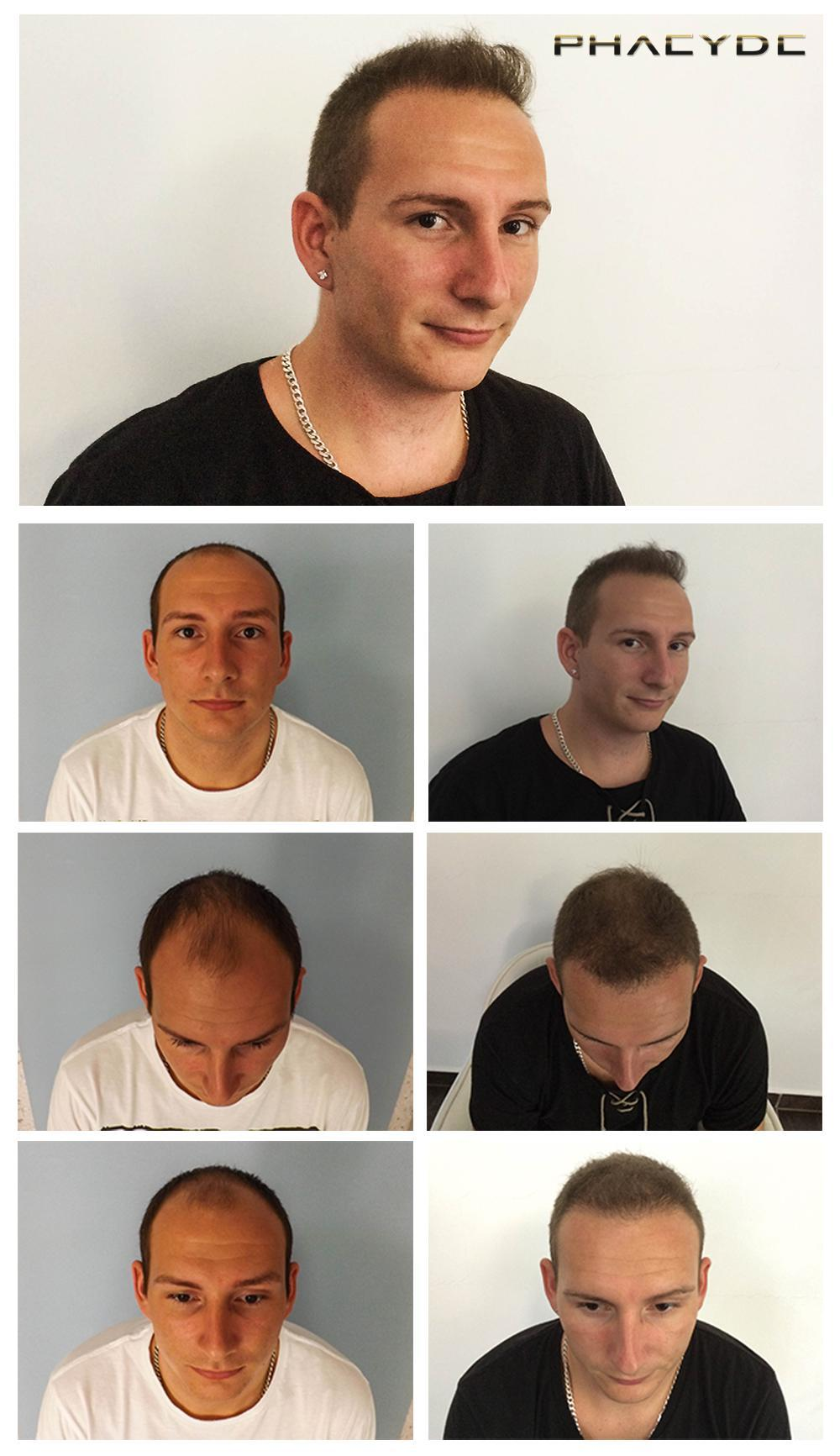 Hair transplant fue results before after photos adam b - PHAEYDE Clinic