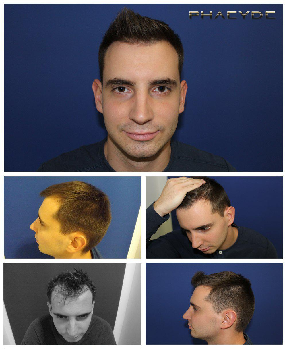 Hair transplant fue results before after photos agoston nagy - PHAEYDE Clinic
