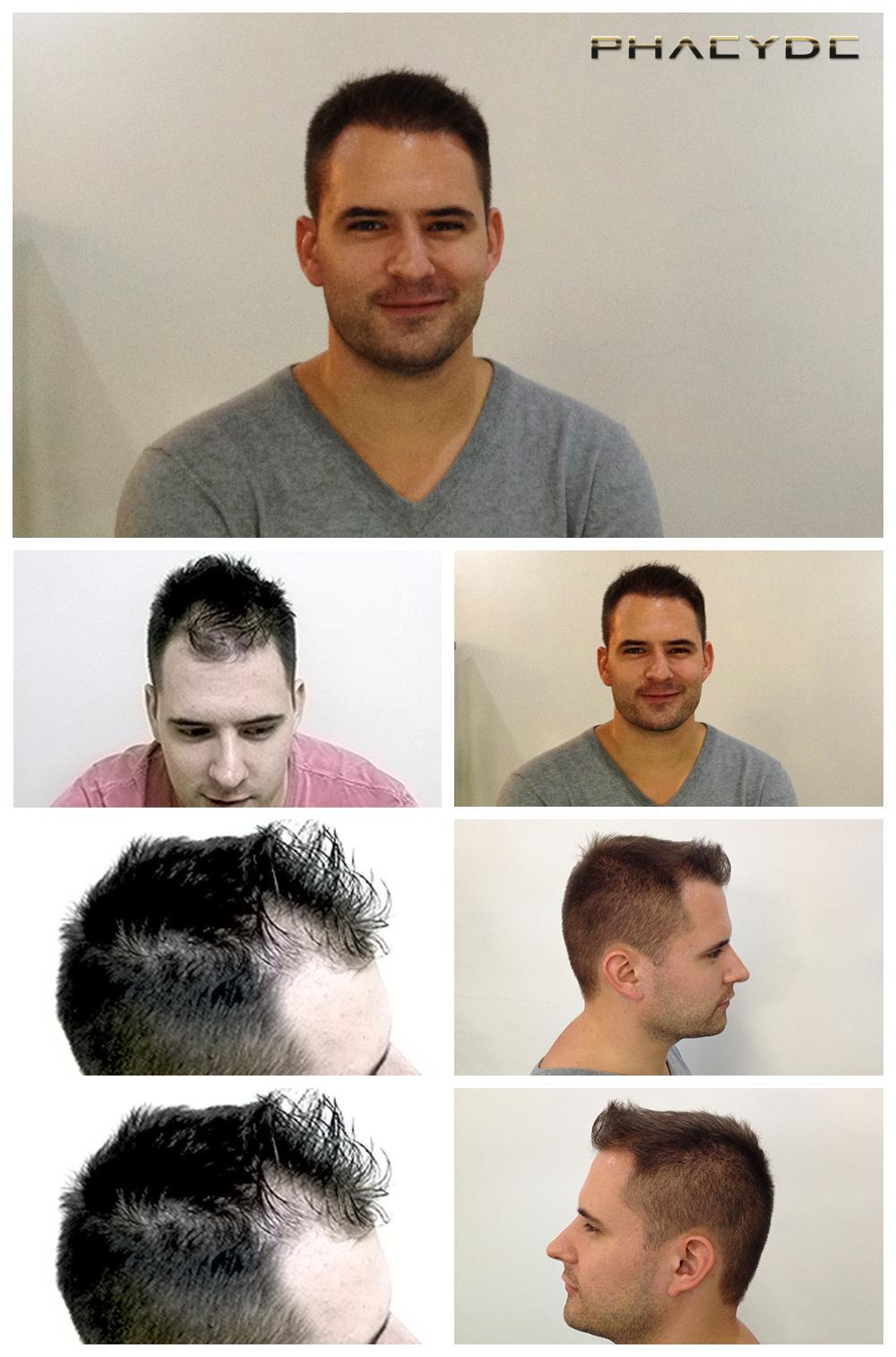Hair transplant fue results before after photos andras somogyi - PHAEYDE Clinic