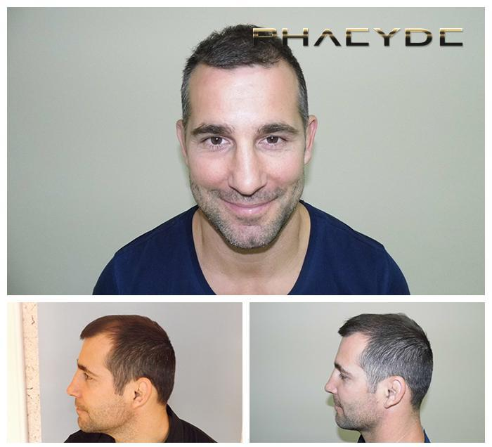Hair transplant fue results before after photos arpad r - PHAEYDE Clinic