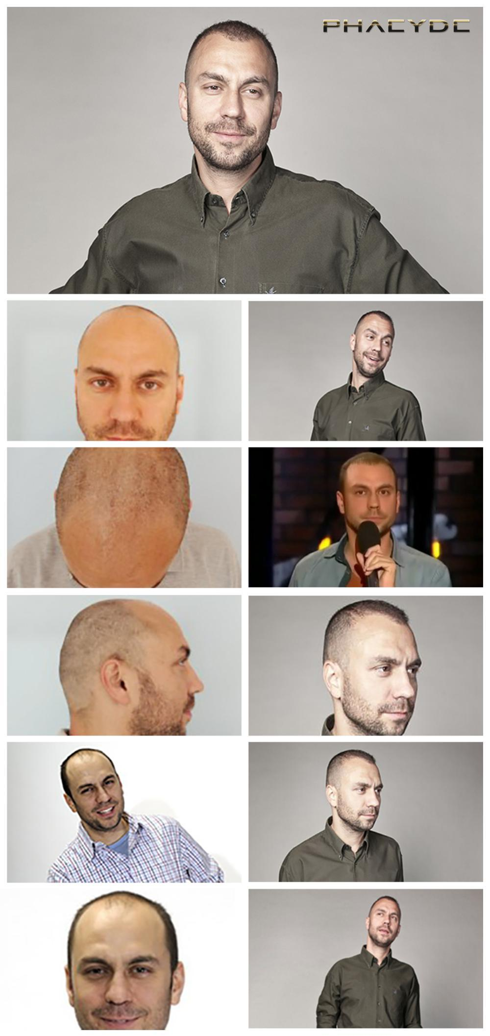Hair transplant fue results before after photos attila csenki - PHAEYDE Clinic