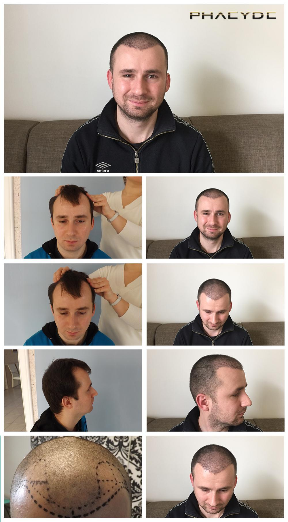 Hair transplant fue results before after photos attila forgacs - PHAEYDE Clinic