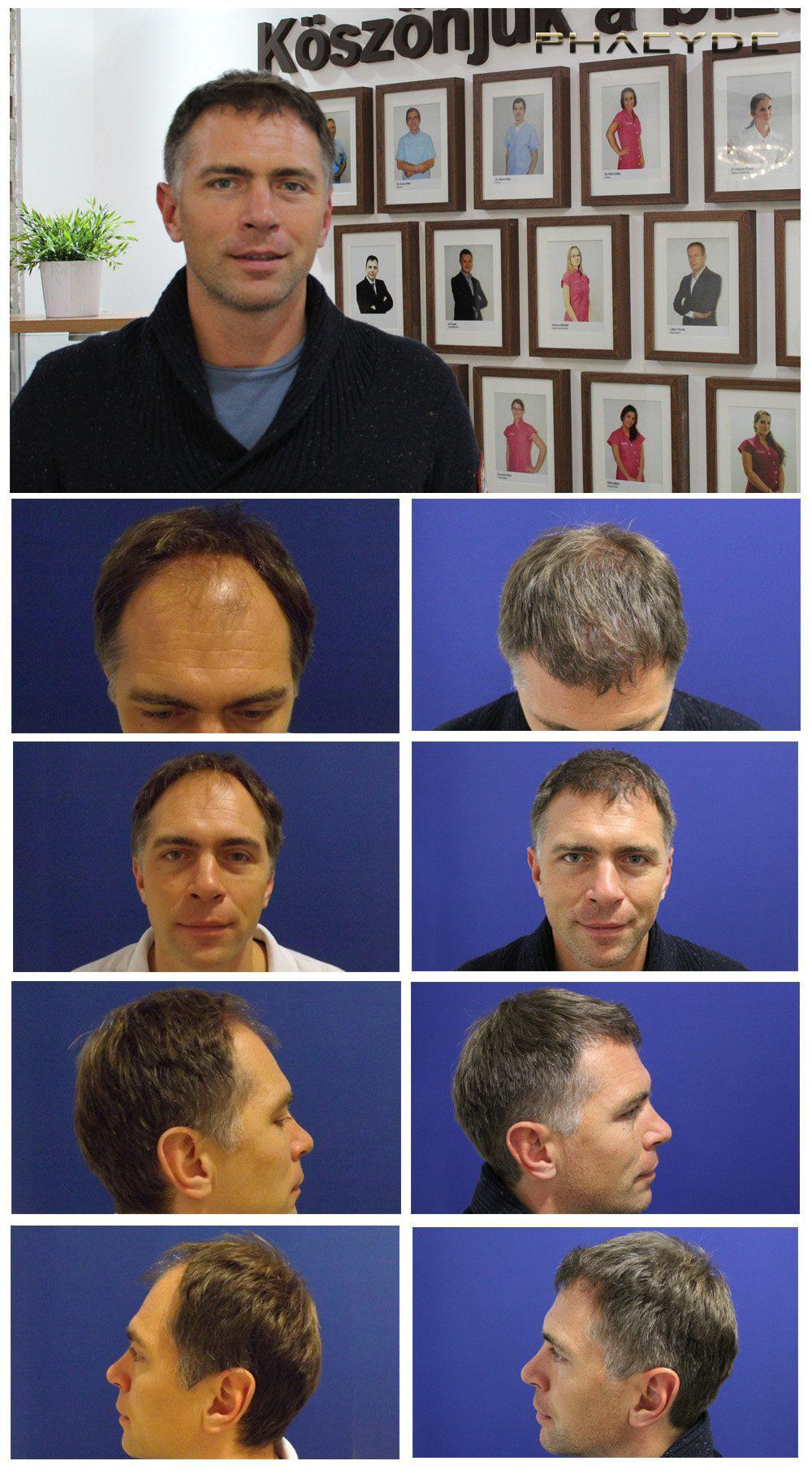 Hair transplant fue results before after photos attila sarkadi - PHAEYDE Clinic