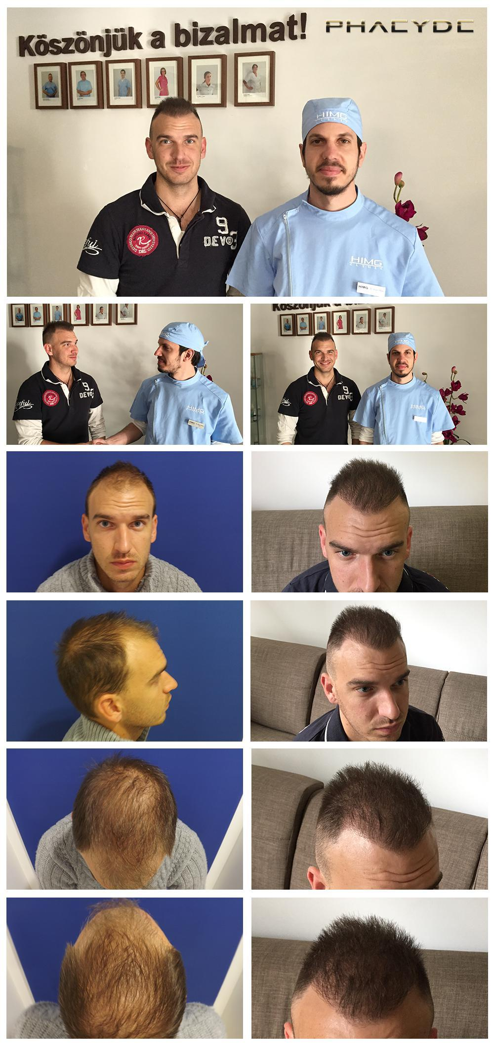 Hair transplant fue results before after photos charles c - PHAEYDE Clinic