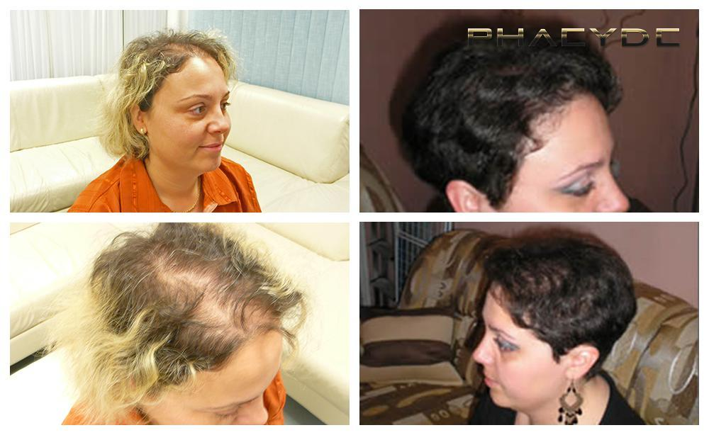 Hair transplant fue results before after photos christina torok woman - PHAEYDE Clinic
